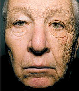 Trucker-driver-sunscreen-damage-28-years